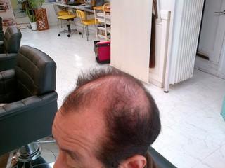 実験!!!髪の毛生えてくるでしょうか!!!8実験